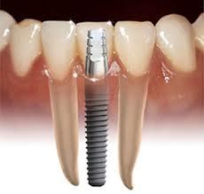 Comprar Implantes Dentales