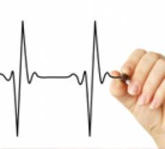 Equipos de Control Cardíaco