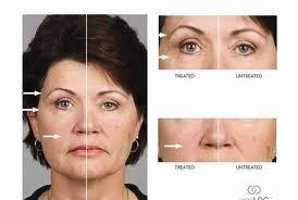 Order Face plastic surgery