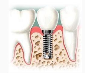 Pedido Cirugía Oral