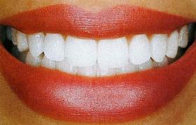 Pedido Odontología Estética