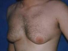 Tratamiento de ginecomastia