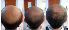 Caída del Cabello o Alopecia